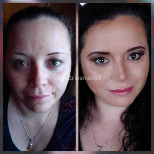 Hermoso antes y después