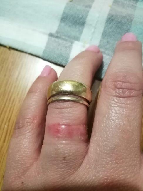Dermatitis por argolla de matrimonio 2
